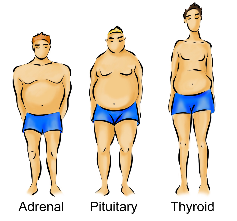 A pic of the 3 men body types, adrenal, pituitary and thyroid showing how the West Island Naturopath uses this unique platform for weight loss