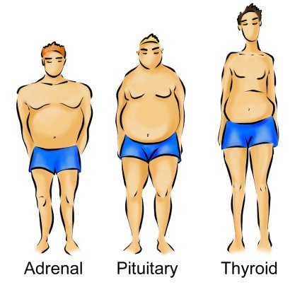 drawing of the 3 male body types,  adrenal, pituitary and thyroid,  to determine what is my body type
