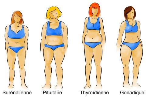 perte de poids Montréal photo des 4 femmes les 4 types glandulaires