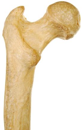 bone density test results